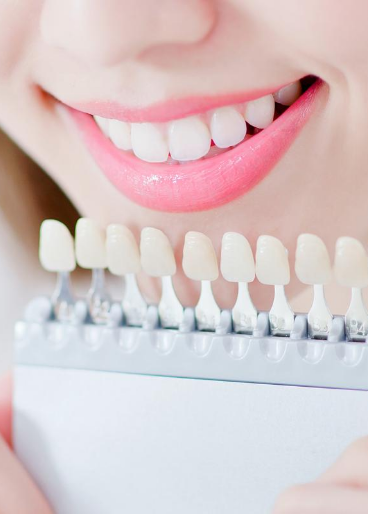 Top Teeth Whitening Kits